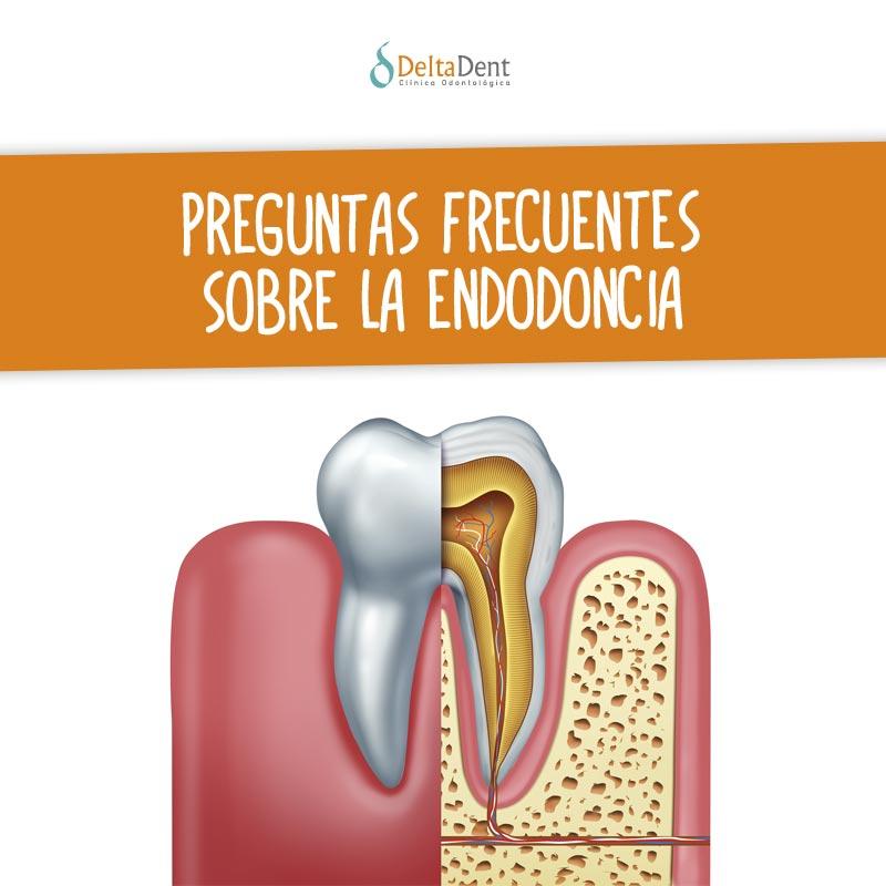 Preguntas-frecuentes-sobre-la-endodoncia.jpg