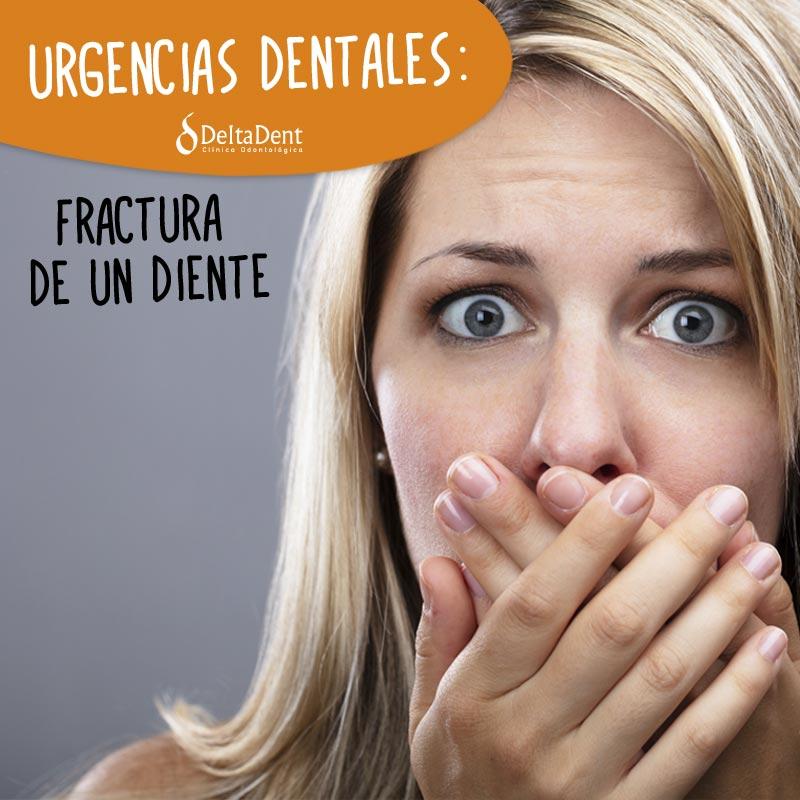 URGENCIAS-Fractura-de-un-diente.jpg