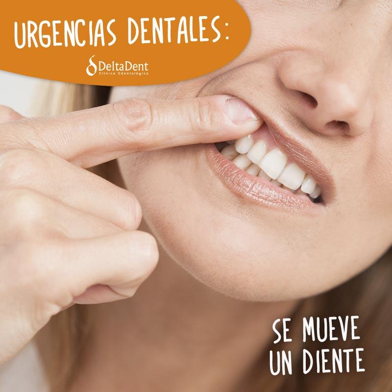 URGENCIAS-Se-mueve-un-diente.jpg