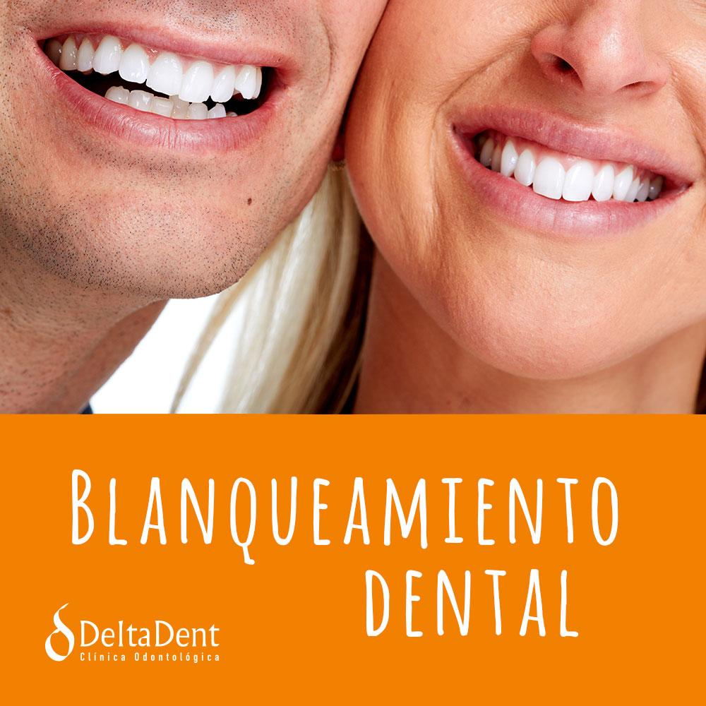 blanqueamiento-dental-deltadent.jpg