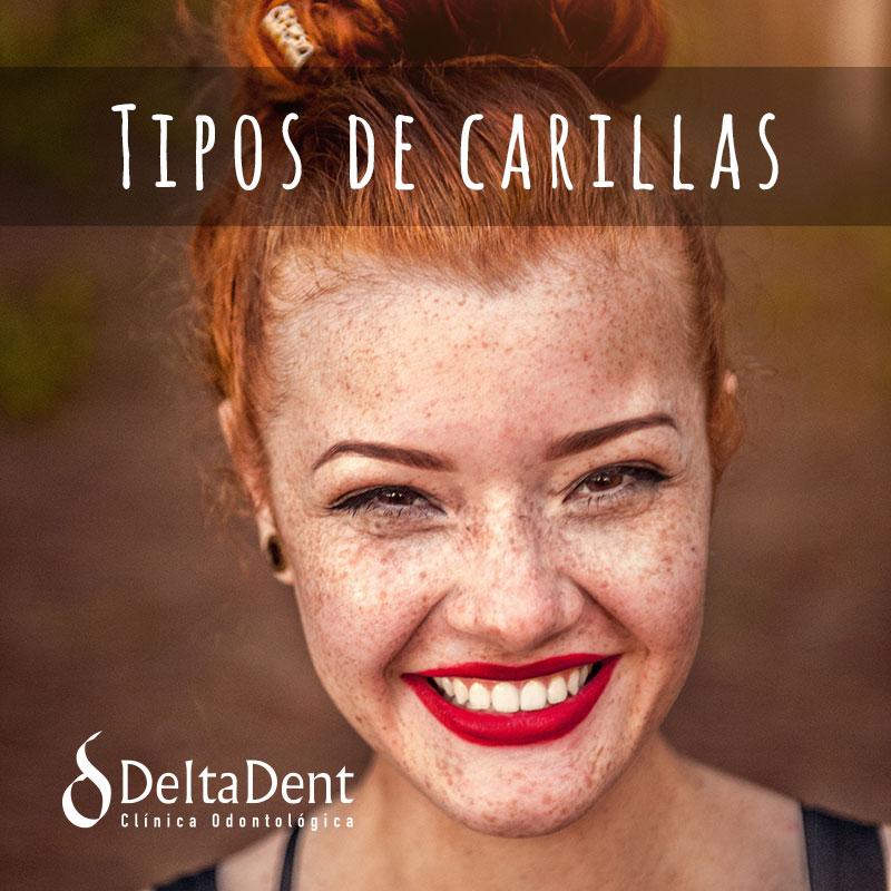 carillas-deltadent.jpg