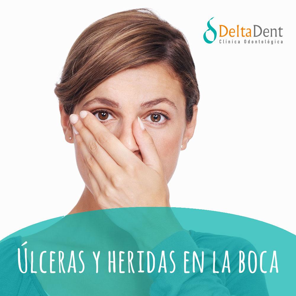 deltadent-ulceras.jpg