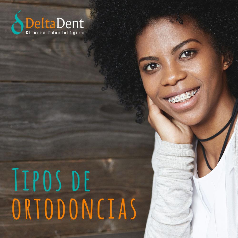 Tipos-ortodoncias-deltadent.jpg