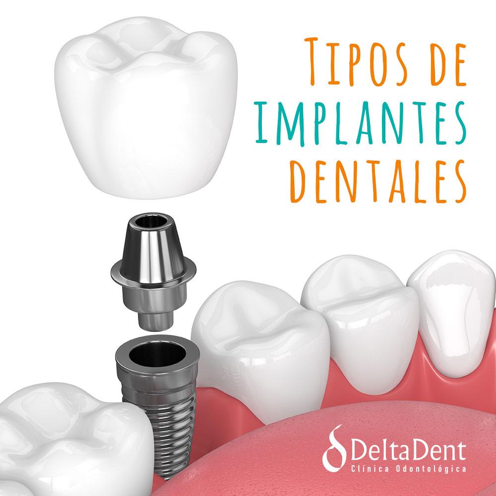 deltadent-implantes-dentales.jpg