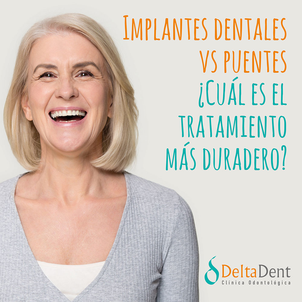 deltadent-implantes-puentes.jpg