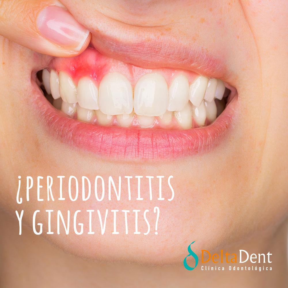 deltadent-periodontitis-gingivitis.jpg
