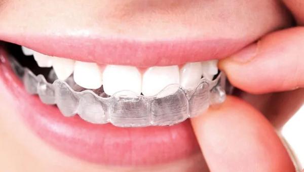 ortodoncia-invisalign-DD.jpg