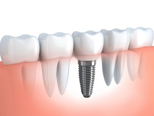 soluciones-implantes-dentales-DD.jpg