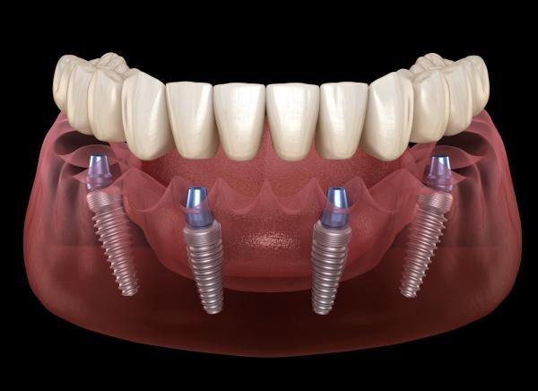 tipos-implantes-dentales-DD.jpg