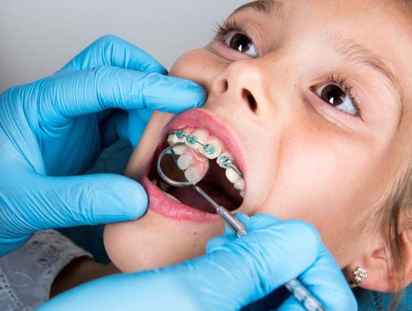 ortodoncia-ninos-DD.jpg